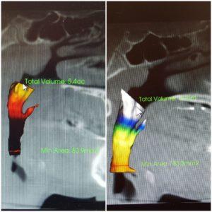 patient_1_ airway_scans