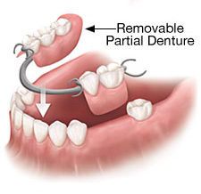 removable-partial-denture